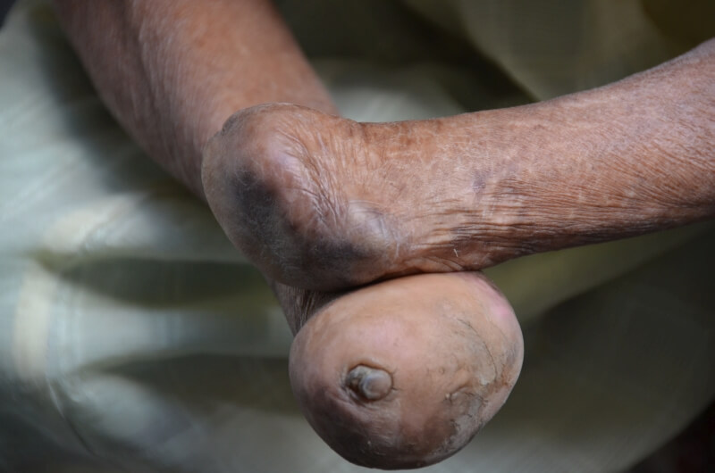 Closeup of leprotic hands
